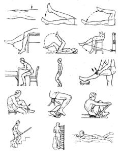 Реабилитация при повреждении мениска