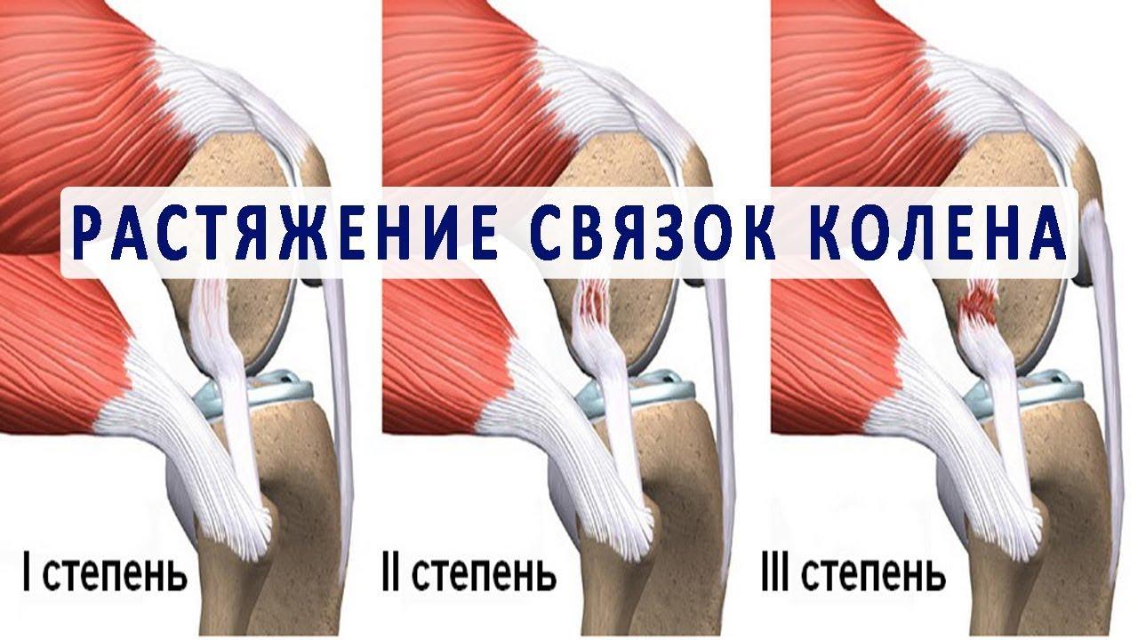 Частичный разрыв связок коленного сустава начать тренировки как правильно лечить суставы и чем