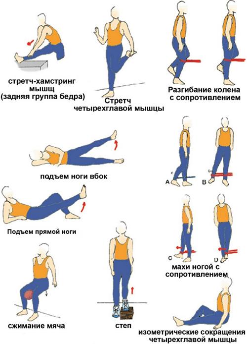 Лечебная гимнастика при разрыве связок коленного сустава ревитализация суставов