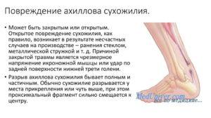 Классификация ахиллова сухожилия