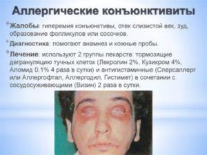 Аллергические конкъюктивиты