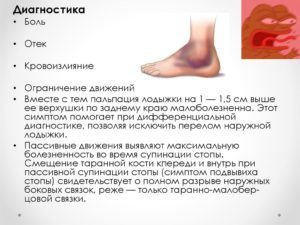 Диагностика лечения растяжения связок голеностопа