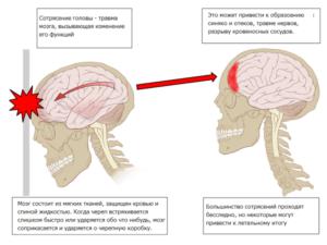 Причины легкого сотрясения мозга