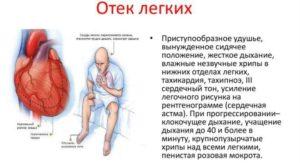 Основные симптомы отека легких
