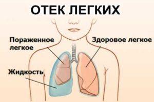 Последствия отека легких