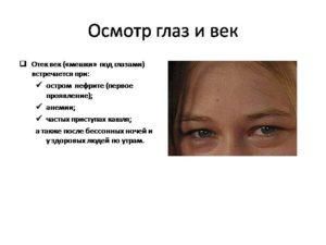 Причины отека глаз и век