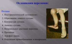 Осложнения переломов
