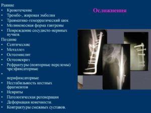 Осложнения после переломов
