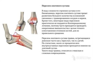 Последствия перелома локтевого сустава