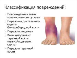 Перелом стопы