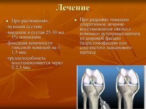 Лечение при растяжениях и разрывах связок