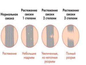 Виды растяжения связок