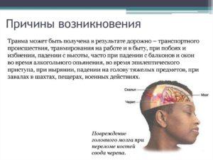 Причины ушиба головного мозга