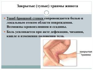 Симптомы травм живота